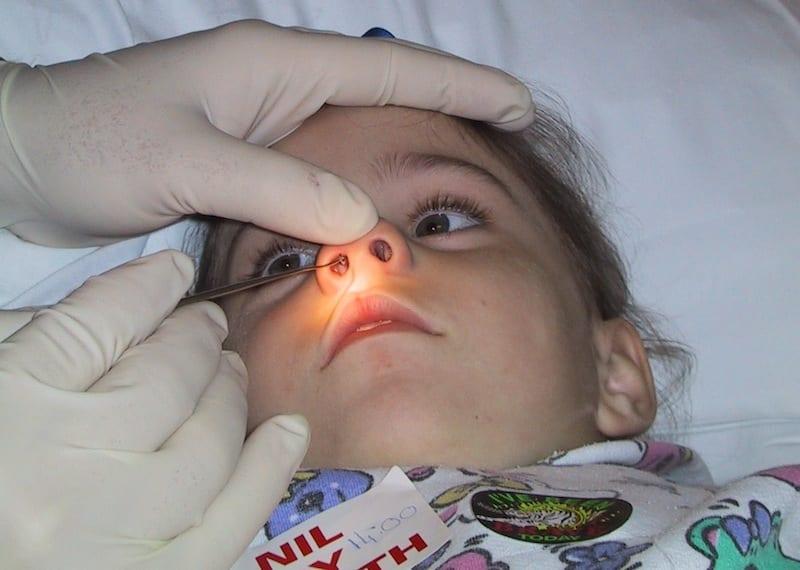 Foreign Body Nose Pediatric