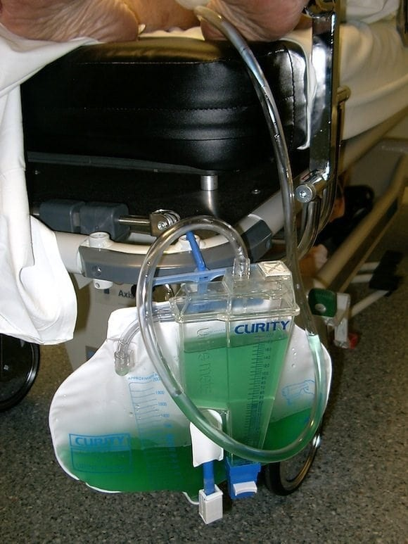 Green Urine Unusual Urine 002 03