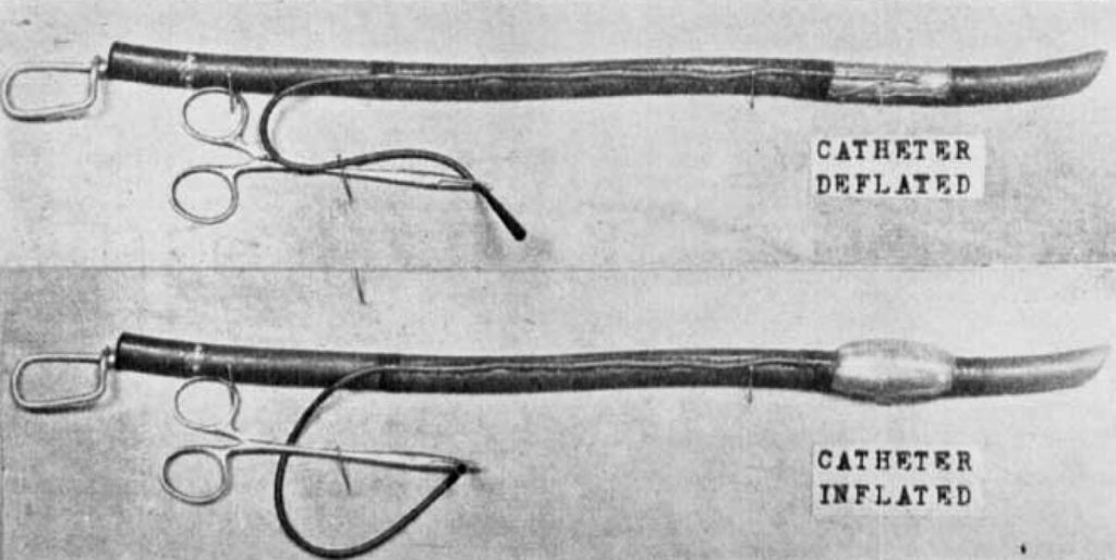 Guedel-Waters Cuffed intratracheal tube (1928)