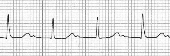 Hidden P waves in marked 1st degree heart block