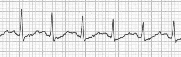 Hidden P waves in sinus tachycardia