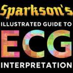 Illustrated-Guide-to-ECG-Interpretation