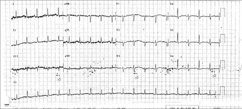 Paradoxical Alternative ECG
