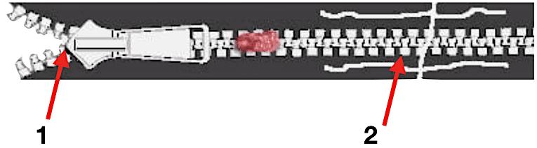 Penile Zipper Entrapment Release zip
