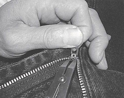Penile Zipper Entrapment Removal