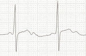 Prominent U waves due to severe hypokalaemia