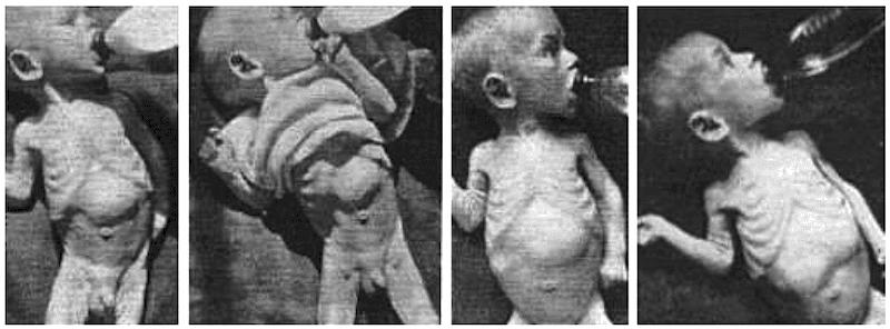 Rankin-pyloric-stenosis 1933