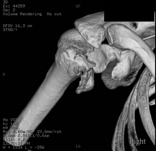 Shoulder dislocation posterior fracture CT 001