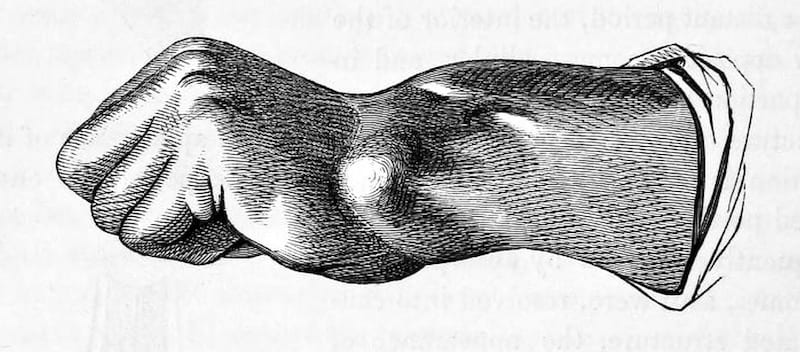 1847 Smith fracture original drawing