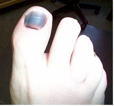 Subungual haematoma great toe
