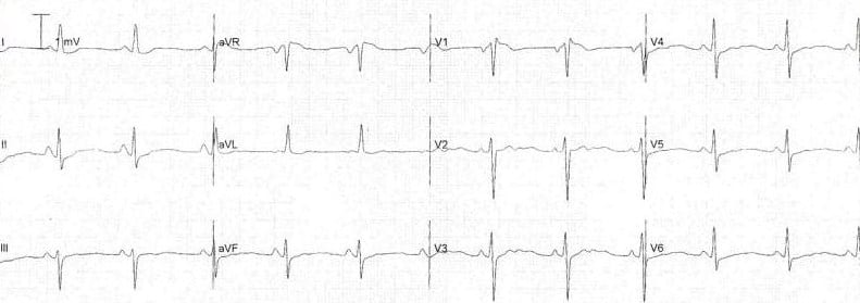 T-wave flattening in hypokalaemia