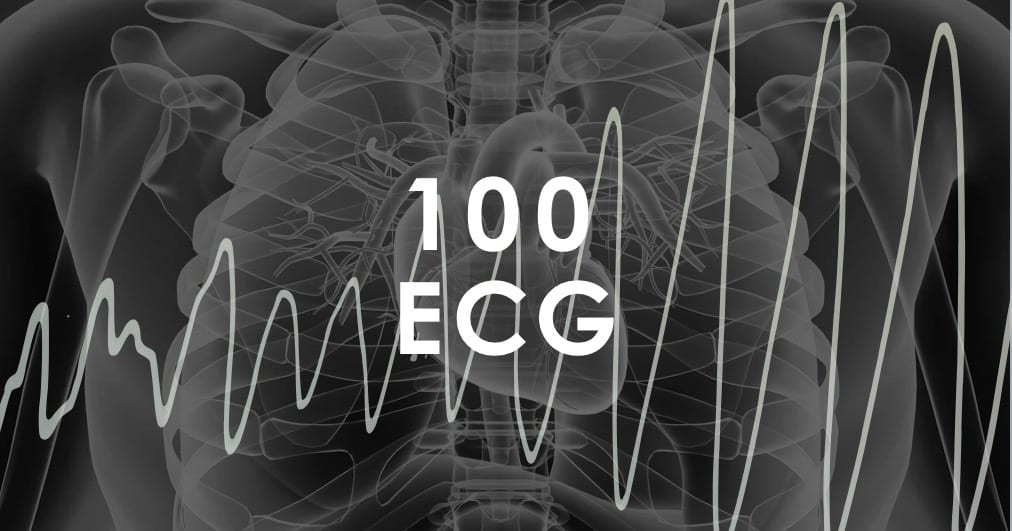 Top 100 ECG • LITFL • Clinical Cases EKG Electrocardiography