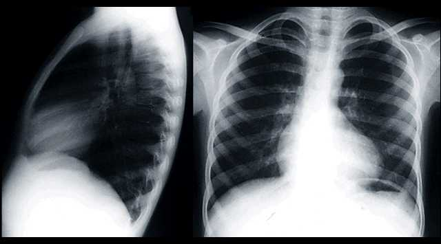 Tetralogy of Fallot pediatric CXR Boot shaped heart