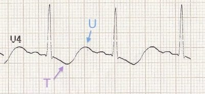 U waves ECG hypokalemia