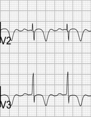 Wellens Pattern B Type 2 T wave