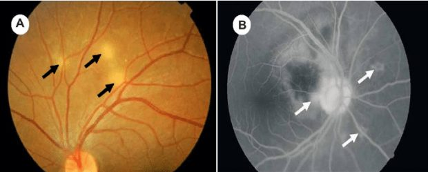 choroidal tubercles in TB