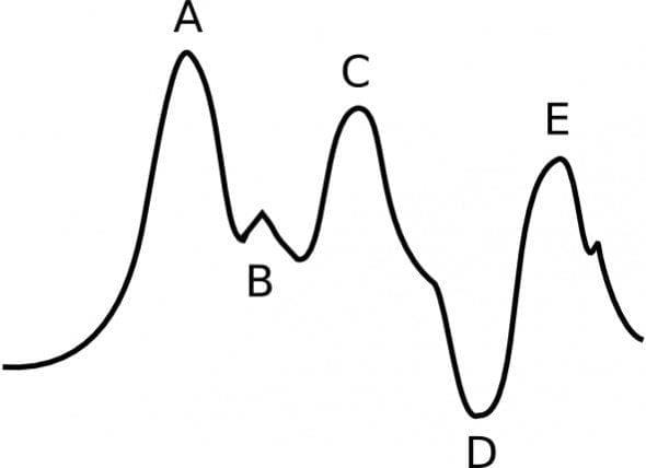 IABP Waveform