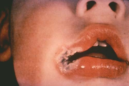 lip-burn