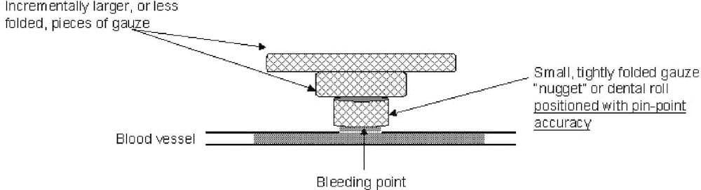 nugget-pressure-bandage