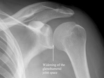 posterior shoulder dislcoation 340