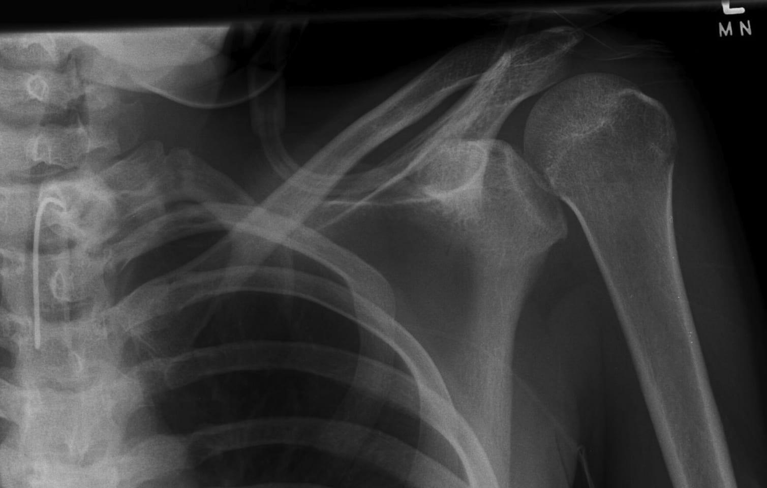 posterior shoulder dislocation Missed Left