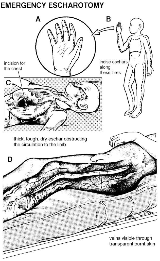 primary-surgery-escharotomy