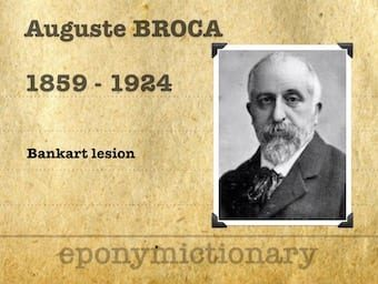 Auguste Broca (1859 – 1924) 340
