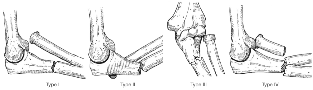 Bado-Classification-of-Monteggia Type I-IV