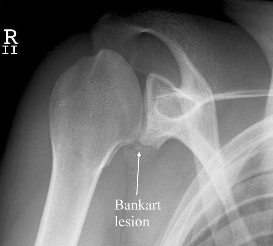 Bankart bony lesion XR