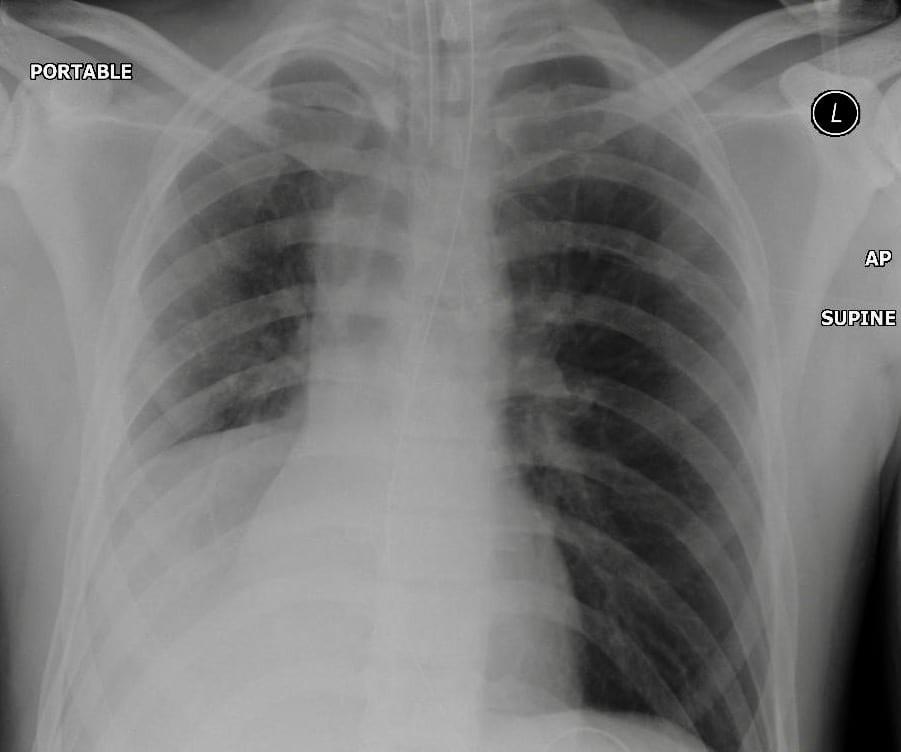 CXR 2 Pulmonary Puzzler 009