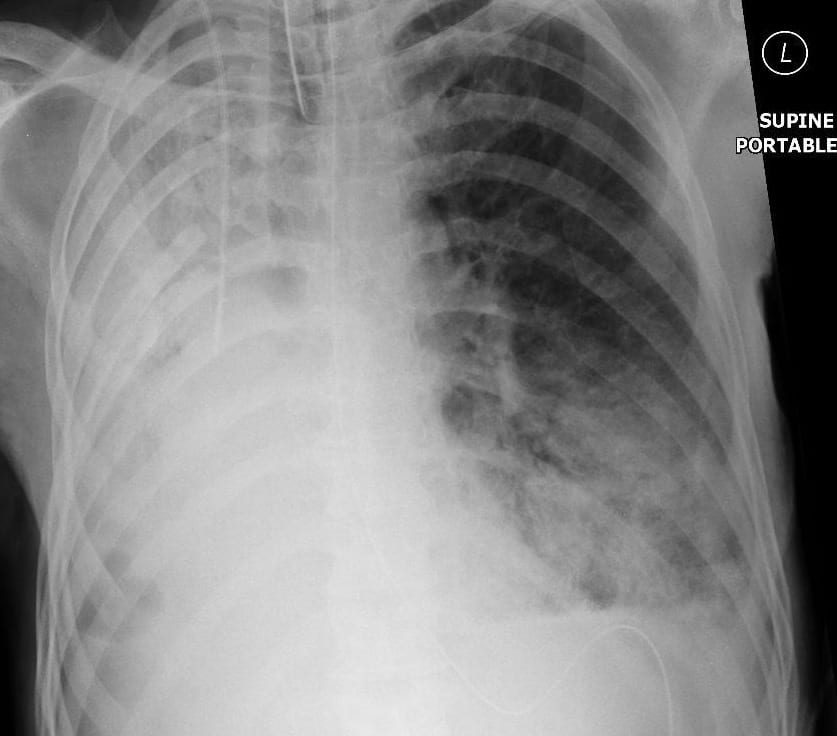 CXR 2 Pulmonary Puzzler 011