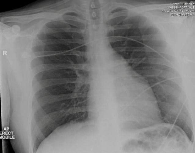 CXR Pulmonary Puzzler 002