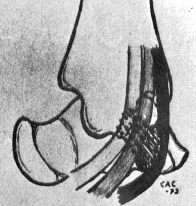 Cedell CA Cedell fracture figure 7