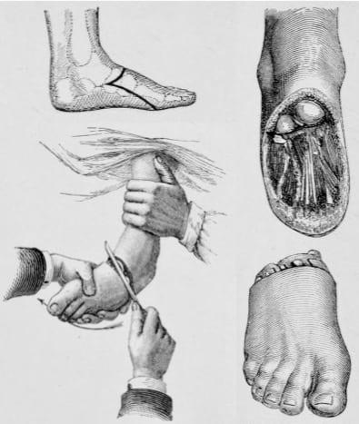 Chopart amputation 1920