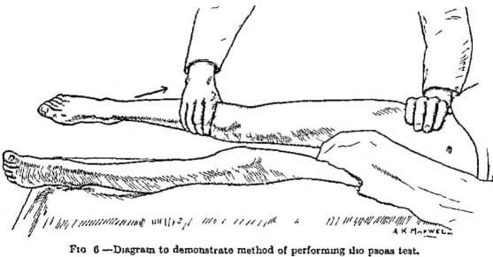 Cope Psoas test (1921)