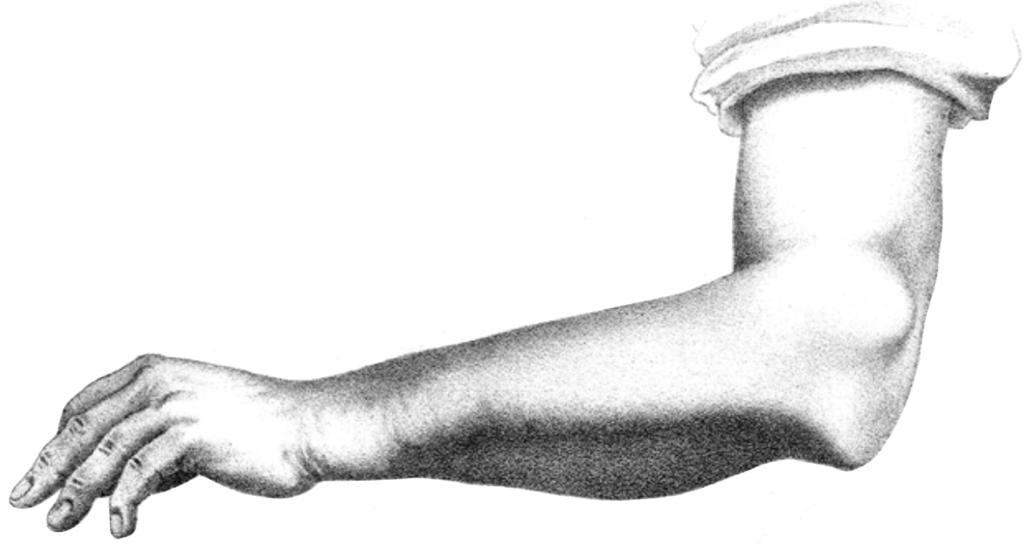 Doerfler 1886 Monteggia fracture dislocation 2