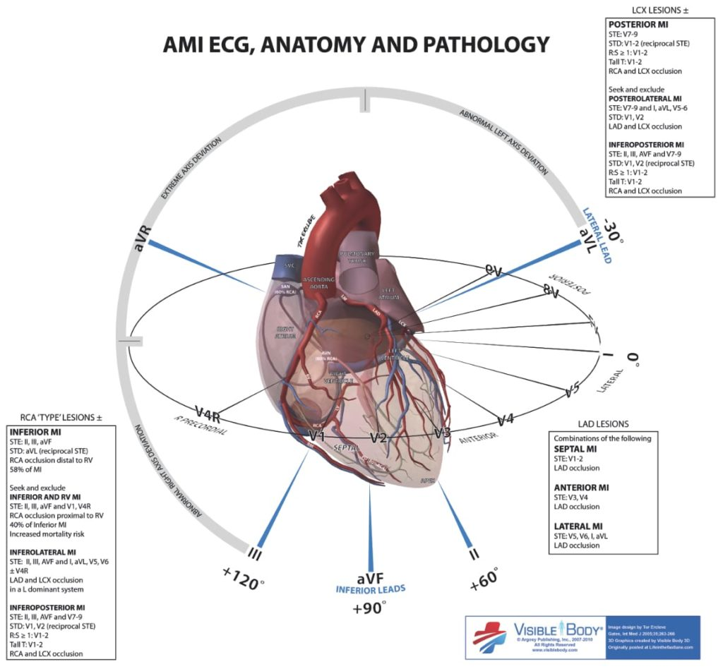 ECG Anatomy LITFL STEMI localisation