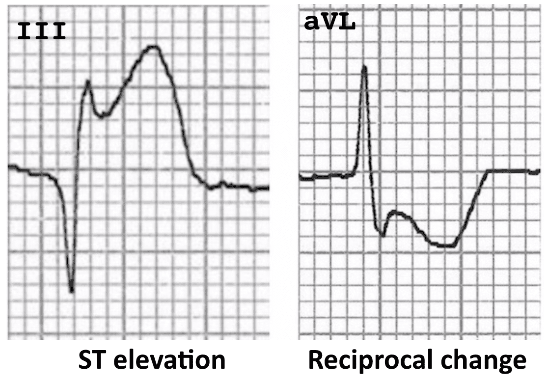 ECG-Complex-ST-Morphology-Reciprocal-change
