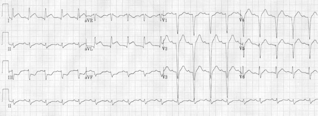 ECG High Lateral STEMI 1