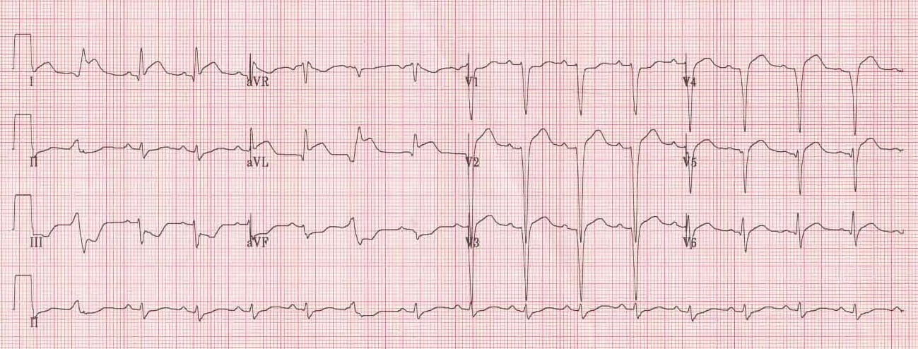 ECG High Lateral STEMI 2