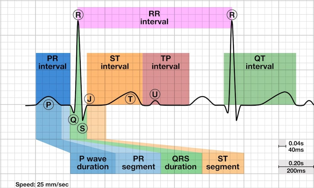 ECG basics: waves, segments and intervals LITFL ECG library