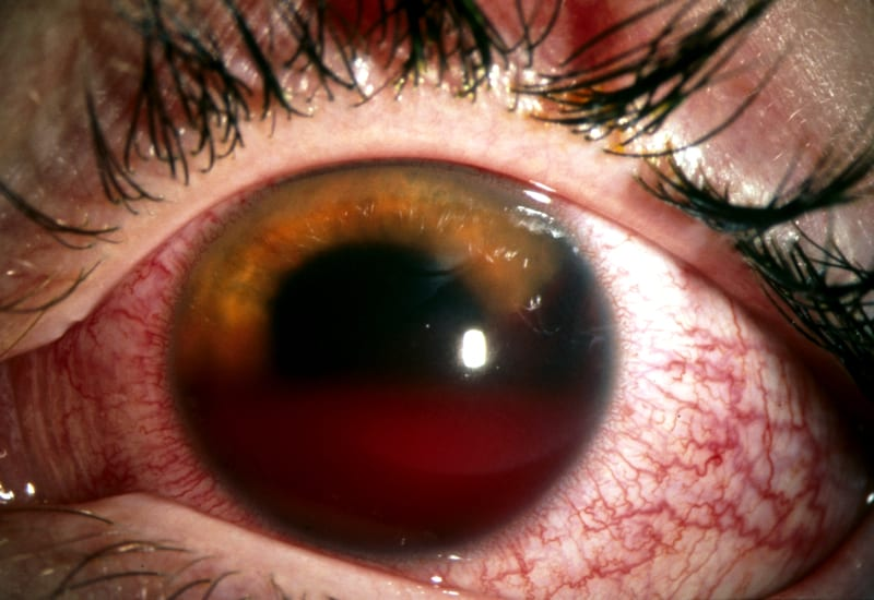 EYE Hyphema hyphaema