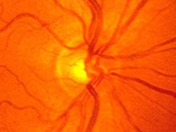 EYE Normal Optic Disc