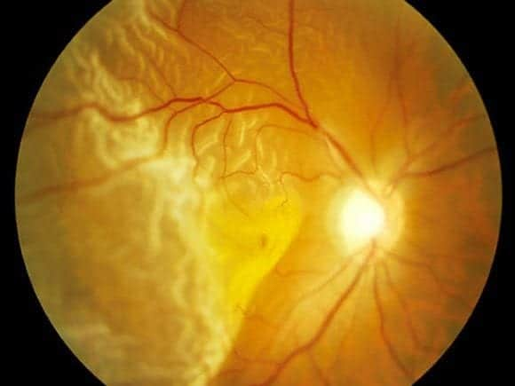 EYE Retinal Detachment