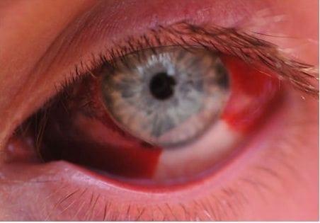 EYE Subconjunctival hemorrhage