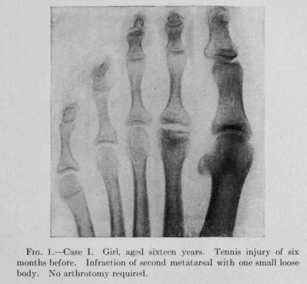 Freiberg original description (case 1903, lecture 1913, published 1914)