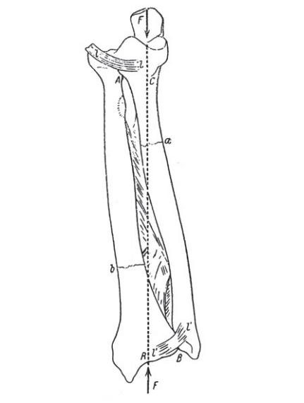 Galeazzi fracture 1934 mechanism
