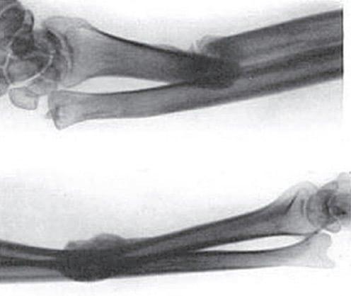 Galeazzi fracture 1934 original radiograph