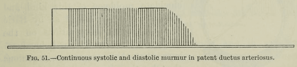 Gibson Murmur PDA 1906 fig 51