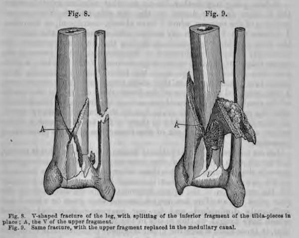 Gosselin-Fracture